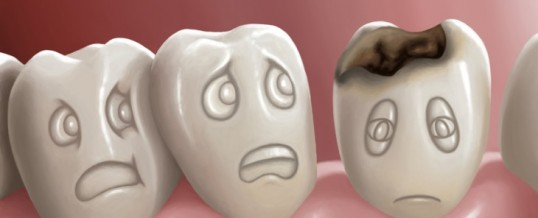 About adult dental anxiety
