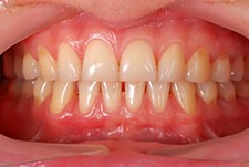 Receding gums: Are your teeth in peril?